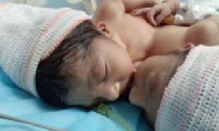 Niñas siamesas nacen en Coro en buen estado de salud