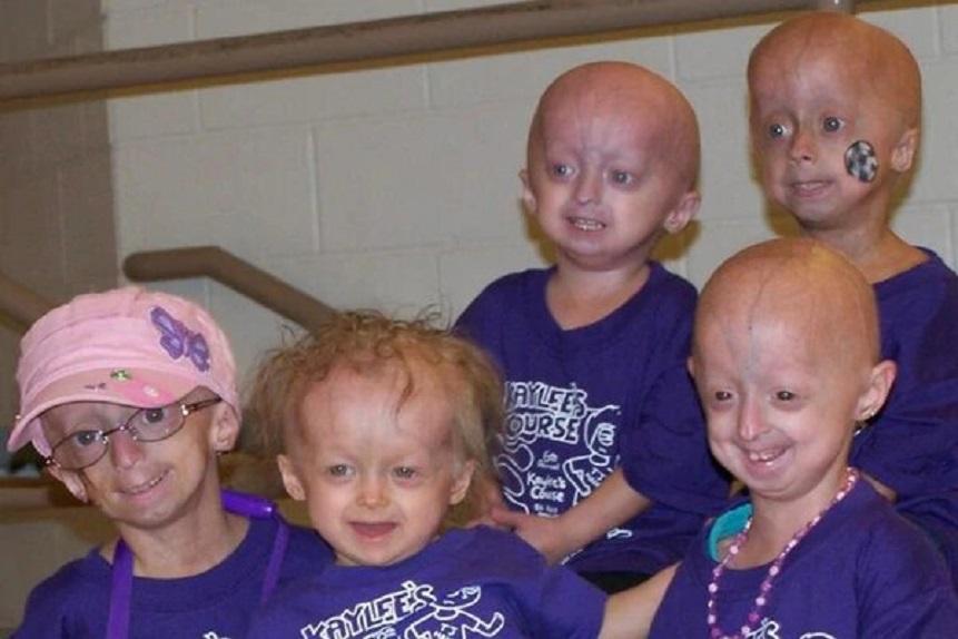 Zokinvy aumenta la esperanza de vida a niños con síndrome de progeria