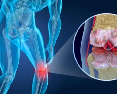 Artrosis: trastorno de los huesos, músculos y articulaciones