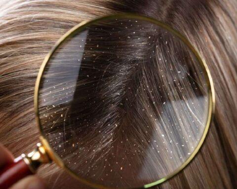 La caspa, un problema del cuero cabelludo. Conoce sus tipos y soluciones