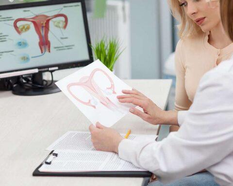 Fibromas uterinos: conoce qué son, síntomas y causas