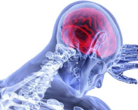 Ictus: trastorno súbito de la circulación cerebral