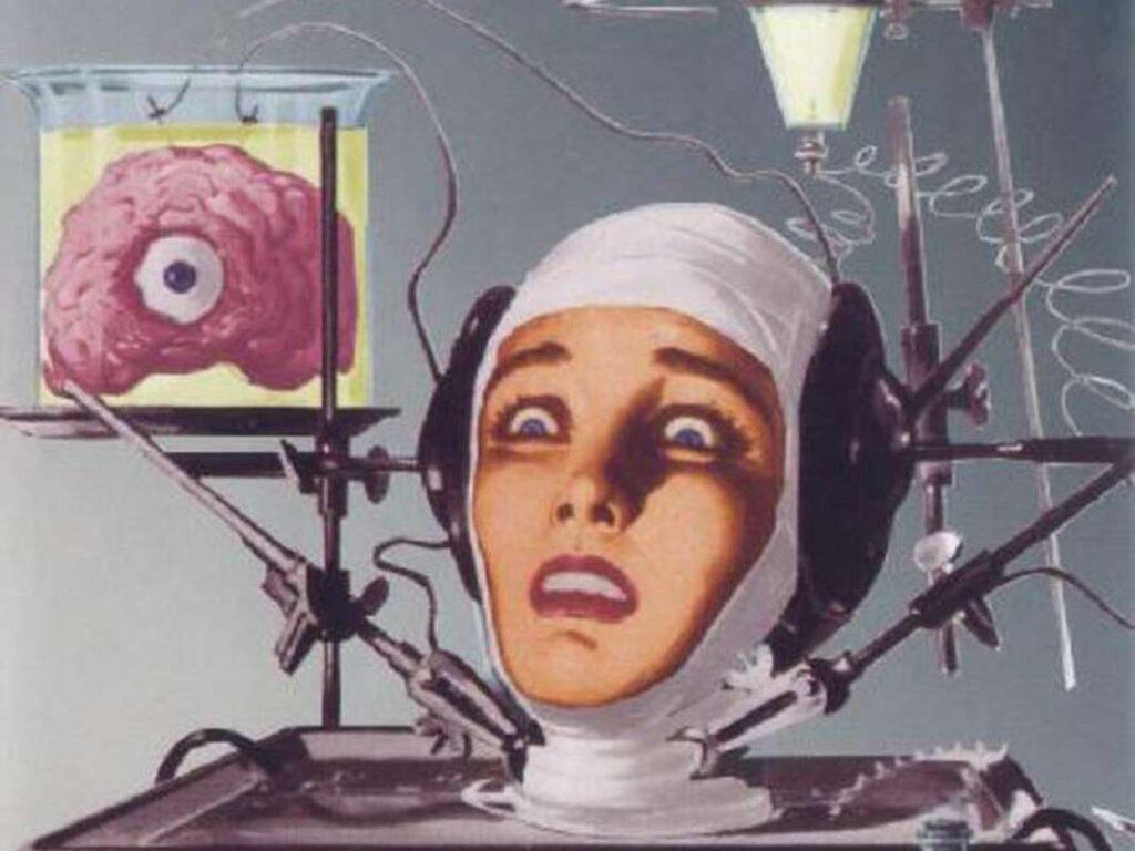 Trasplante de cabeza: ¿Qué pasaría si algo así se hiciera a una persona?