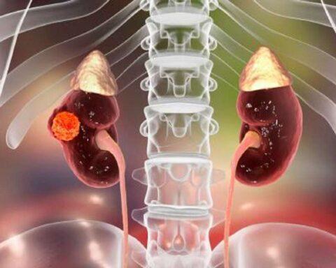 Cáncer de riñón: terapia con frío, una solución efectiva frente a este mal